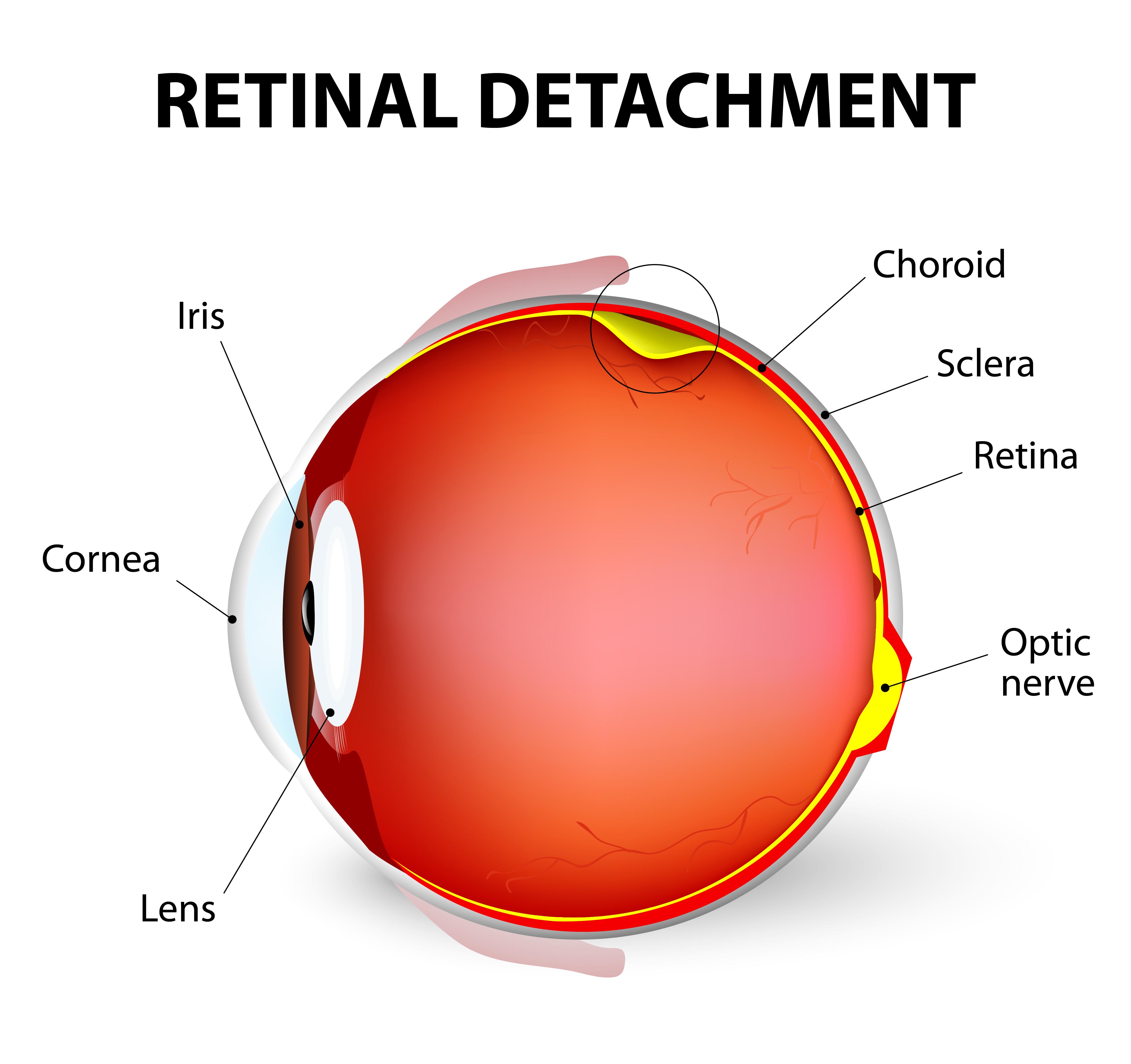 Drusen Not Associated with Macular Degeneration  Retina